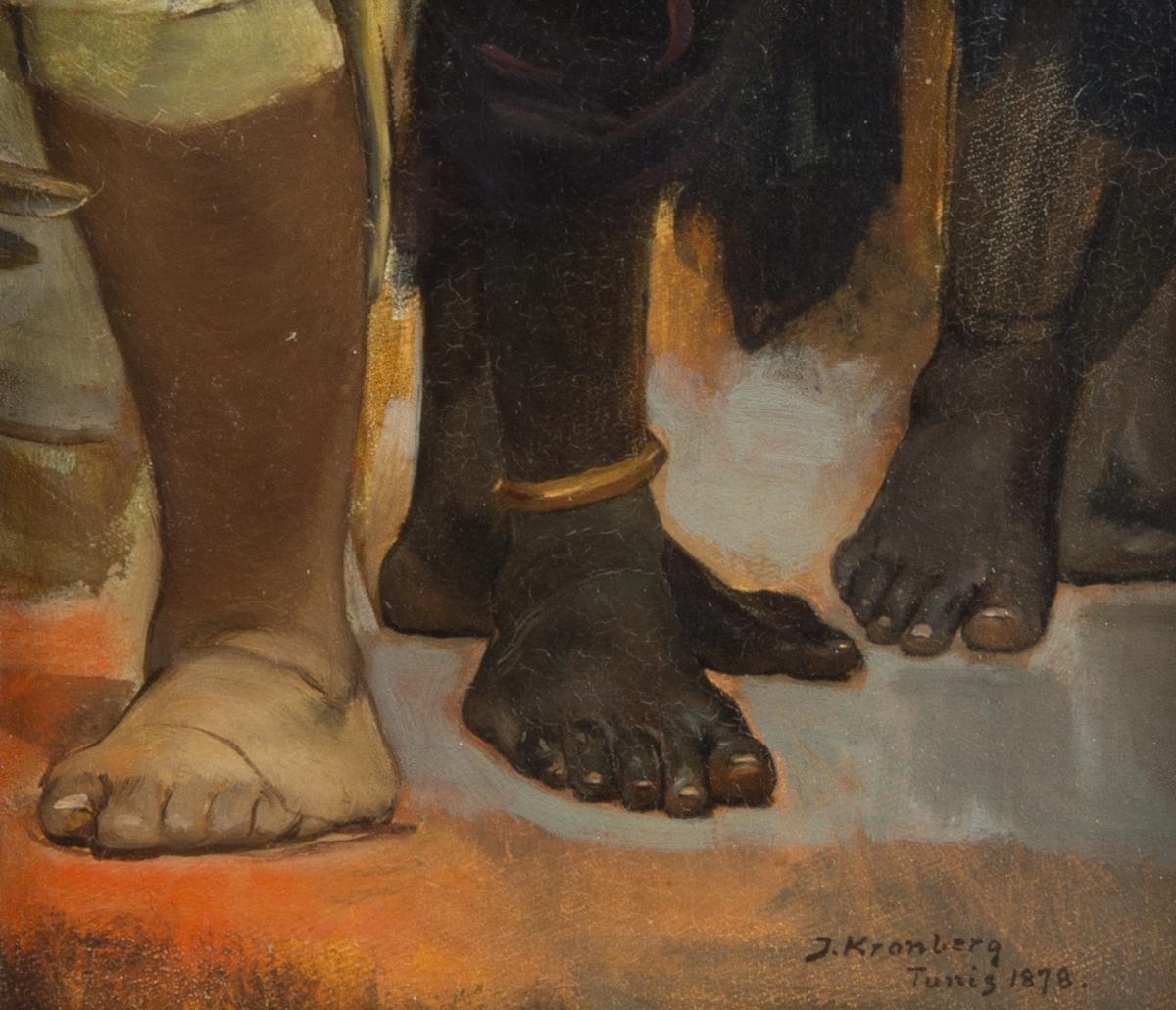 Fyra nakna fötter och delar av underben. En vit och tre svarta. En av de svarta har en ring runt ankeln.