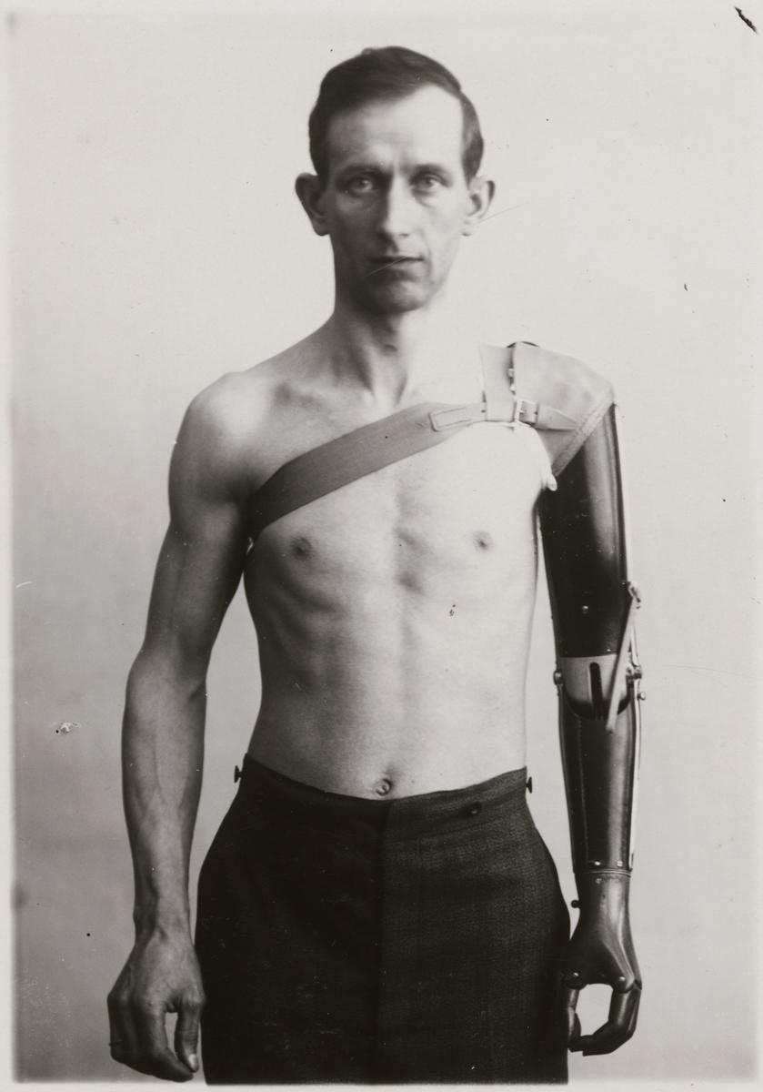 """Fotografi från """"Redogörelse för tillverkning vid Statens Järnvägars protesverkstad i Nässjö"""", 1932. Visar armprotesens rörelseförmåga och användbarhet."""